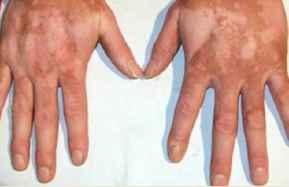 手背上白癜风这病发时什么症状